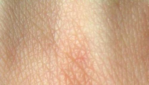 Masque miracle pour le visage le corps et les cheveux - Gommage visage maison point noir ...