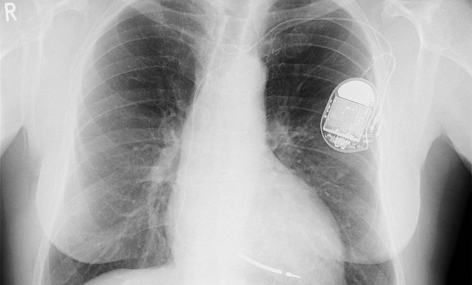 Dispositifs médicaux pacemaker