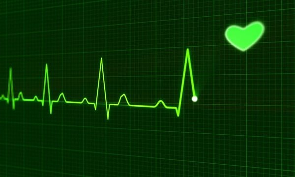 Apple Watch électrocardiogramme